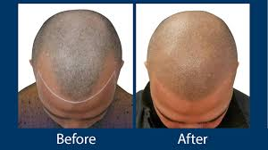 the beginner guide to prp therapy for hair loss