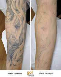 go tattoo removal u2022 this is a portion of a full sleeve we faded