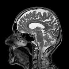 Sagittal Brain Mri Anatomy Anatomy And Physiology Of Speech Hearing And Language Mechanisms