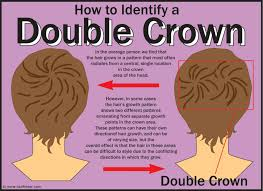 hair cuts for balding crown problem haircuts for a double crown hair growth pattern