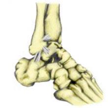 High Ankle Sprain Anatomy High Ankle Sprain Symptoms Causes And Treatment