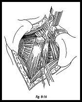 How To Palpate Subscapularis Stabilization Of The Shoulder Shoulderdoc