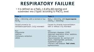 Types Of Ventilators Oxygen Therapy Surgical Department Ppt Video Online Download