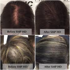 Injection In Scalp For Hair Growth Scalp Micropigmentation Smp The End Of Hair Loss And Balding