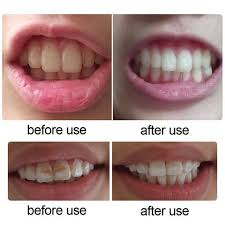 how to use teeth whitening kit with light led teeth whitening kit my favorite online store shop now