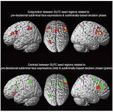 anterior and posterior subareas of the dorsolateral frontal cortex