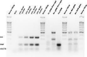hepatitis b virus dna quantification with the three in one 3io