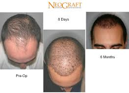 neograft recovery timeline neograft delaware skin wellness
