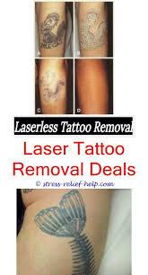 tattoo removal does it work black tattoo removal does laser removal for tattoos work how to