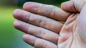 itchy bumps on hands that spread is that rash psoriasis psoriasis pictures and more everyday health