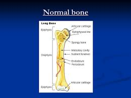Normal Bone Anatomy And Physiology Bone Pathology Ppt Video Online Download