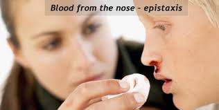 blood from the nose u2013 epistaxis tips for preventing nose bleeding