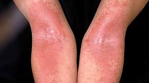 light therapy for eczema types of eczema identification pictures and more