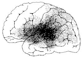 Cortical Blindness May Result From The Destruction Of Brainmind Com