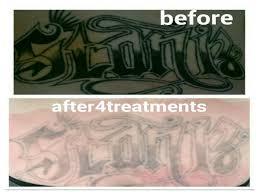 tattooing in kiama nsw australia whereis