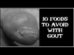 10 foods to avoid with gout when you are on a uric acid diet youtube