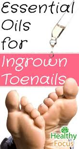essential oil for ingrown hair how to get rid of an ingrown toenail healthy focus