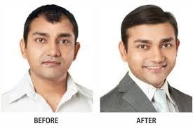 hair bonding shapein hair fixing center photos ranipur haridwar pictures