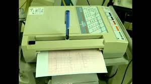 ecg eletrocardiografo dixtal de 12 derivações youtube