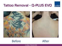 q plus c evo tattoo removal laser removes all treatable colours
