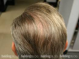 haircuts for crown bald spots balding blog favorites archives page 6 of 9 wrassman m d