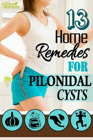 pilonidal cyst location 13 effective home remedies for pilonidal cysts natural