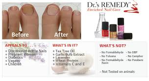 5 free nail polish can be used with topical fungus medications or
