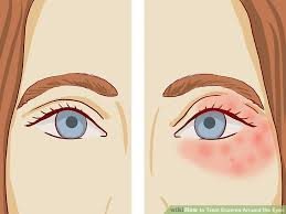 eyes sensitive to light treatment how to treat eczema around the eyes with pictures wikihow