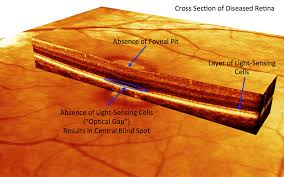 Cause Of Color Blindness Color Blindness Cause Identified