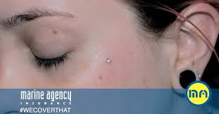 Piercings The Skin 5 Things You Need To Before Getting Surface Anchor Piercings