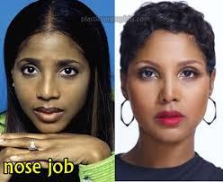 tamar braxton nose job before after toni braxton plastic surgery before and after plastic surgery hits