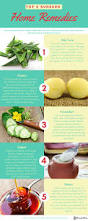 best 25 how to help sunburn ideas on pinterest best cure for