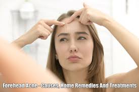 Face Mapping Pimples Pimples On Forehead Causes Easy Treatments And Home Remedies