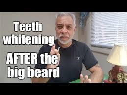 Big Teeth Meme - teeth whitening after the big beard youtube