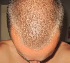 how wide is a normal hairline part m shaped hairline baldtruthtalk com
