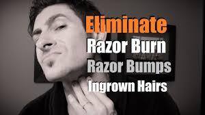 electric shaver ingrown hair how to eliminate razor burn bumps and ingrown hairs razor burn