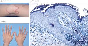 annular plaques with skin atrophy in a young patient dermatology