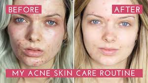 Best Skin Care For Adults With Acne My Acne Skin Care Routine How I Cleared My Acne Mypaleskin