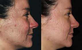 bellafill filler to fill in scars advanced dermatology