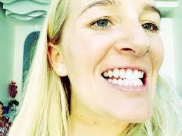 teeth whitening in phuket pommie travels