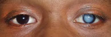 The Blind Spot In The Eye Is Due To What Causes The Milkiness In The Eyes Of Blind People Quora