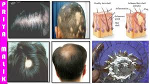 Signs Of Hair Loss Male Grow Long Hair 100 Natural Hair Loss Treatment Cure Baldness
