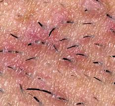 it looks like a simple ingrown hair within his chest home remedies for ingrown hairs