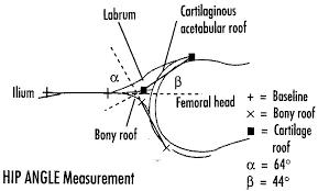 developmental dysplasia of hip d d h looking through a transducer