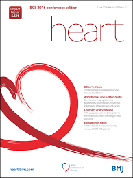 non invasive imaging to identify susceptibility for ventricular