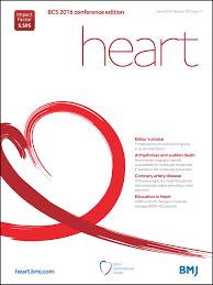 non invasive imaging to identify susceptibility for ventricular