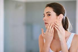 Soigner L Acne Se Débarrasser Des Boutons D 3 Remèdes Naturels Pour Se Débarrasser Des Cicatrices D Acné Puretrend