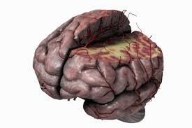 The Anatomy Of The Human Brain White Matter And Your Brain