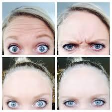 ageless beauty skin clinic 10 photos u0026 64 reviews skin care