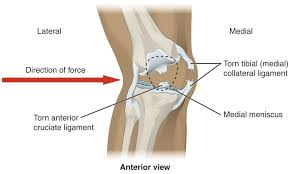 Anatomy Of The Knee 9 6 Anatomy Of Selected Synovial Joints Anatomy And Physiology